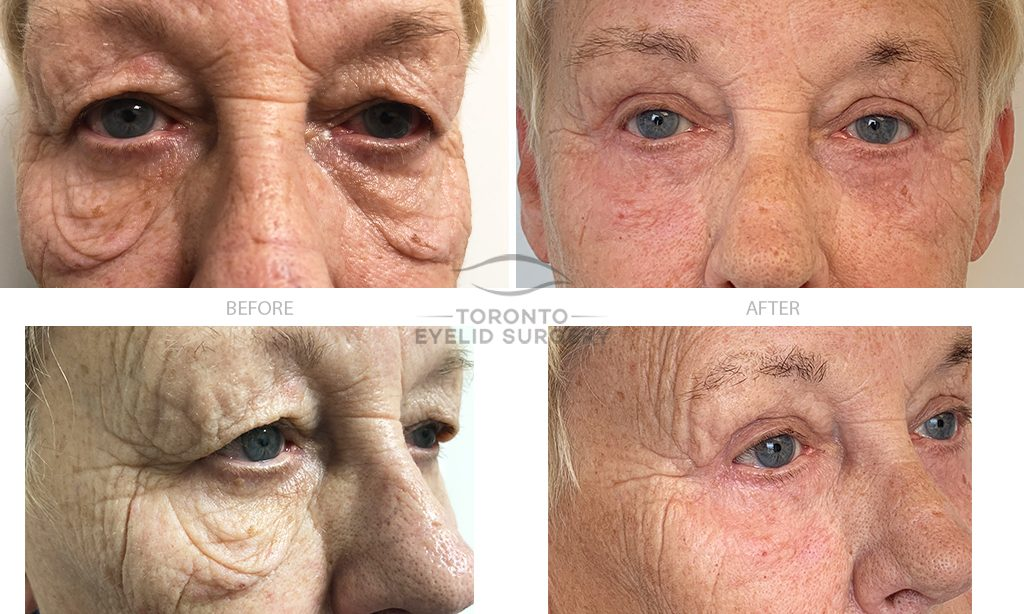 Patient # 30_4 lid blepharoplasty + laser resurfacing_BEFORE AND AFTER gallery_V2