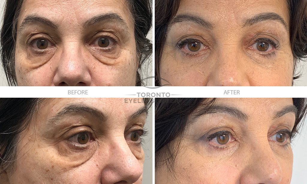 Patient # 31_Lower lid blepharoplasty_BEFORE AND AFTER gallery_V1