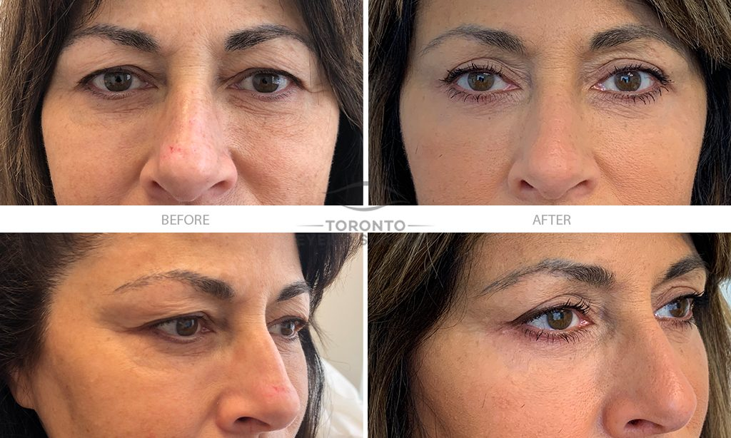 Patient #33 Bilateral upper lid blepharoplasty_laser resurfacing_fillers lower lids