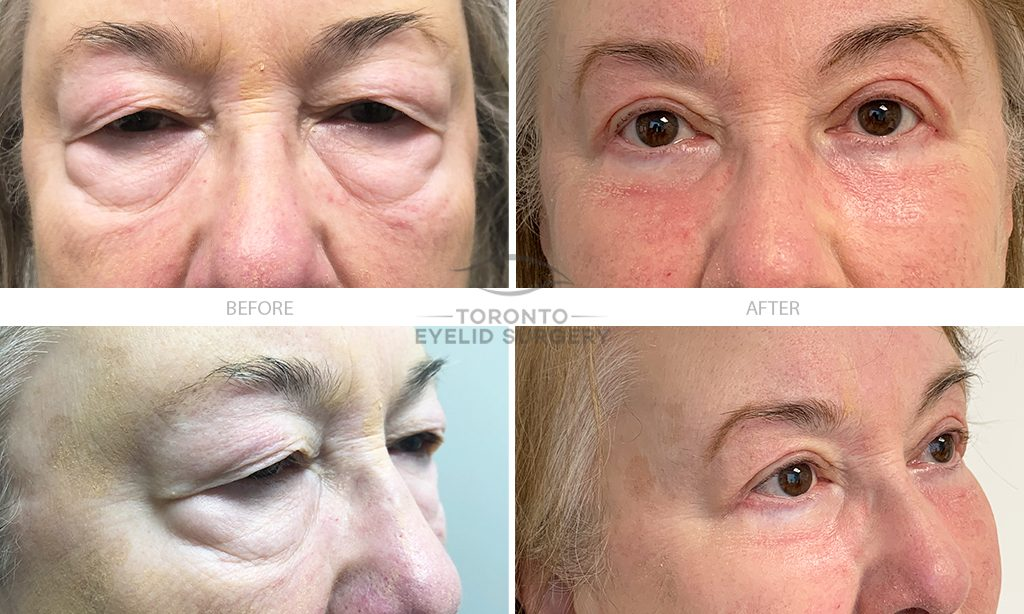 4 lid blepharoplasty_lid ptosis repair_co2 laser resurfacing