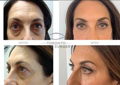 Patient-25_Left-brow-lift-with-4-lid-blepharoplasty_Before-and-After-gallery_V2-300x213-2-e1595292947319